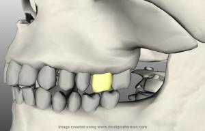 Отображение скелета с одним выбранным зубом